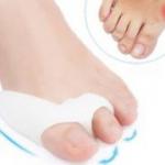 Силиконовая накладка для шишки на ноге